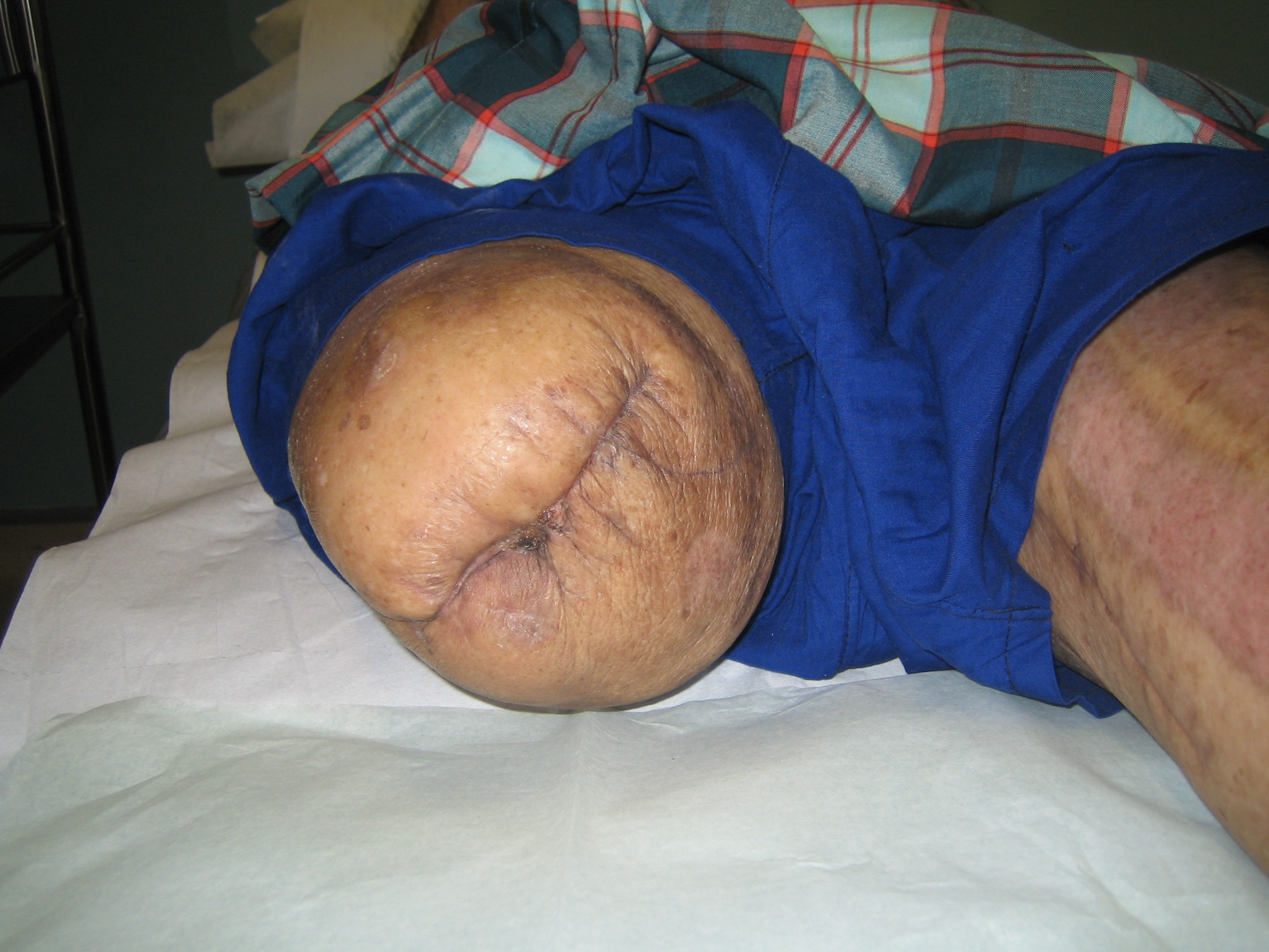Figure 4: Picture of healed amputation stump wound of Case 2.